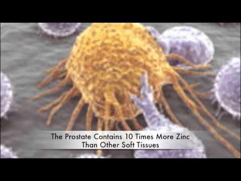 Komplexität der Operationen an der Prostata