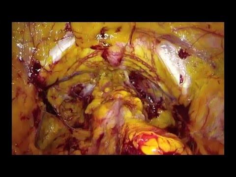 Termini di trattamento del cancro alla prostata