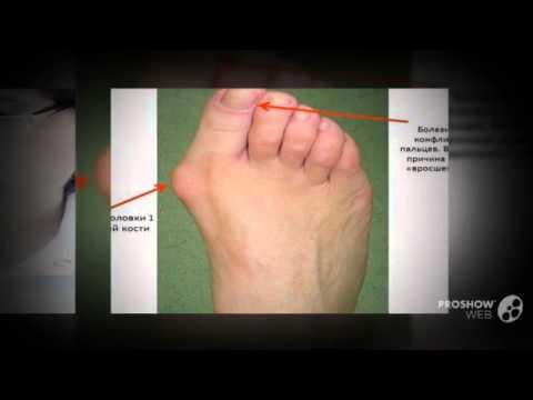 Болит косточка на стопе около большого пальца
