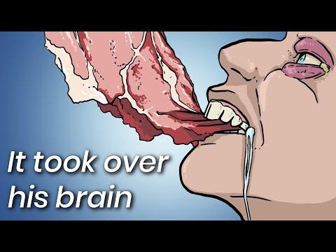 Detoxifierea ficatului medicamente