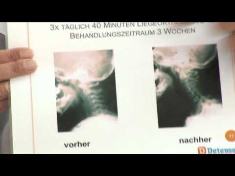 Behandlung von Schmerzen im Nacken und Kopf