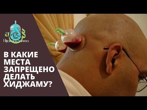 Криотерапия рак простаты
