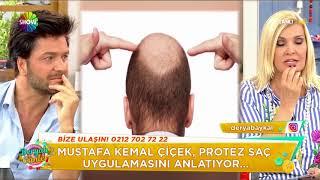 Protez saç uygulaması