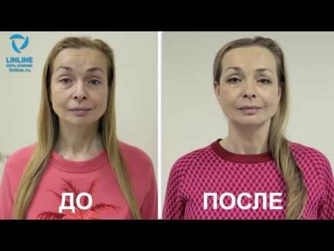 Моделирование лица лифтинг лица
