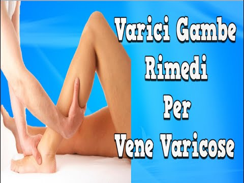 Varicosity a donne incinte