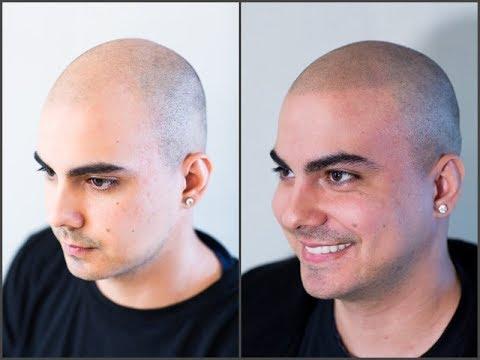 Die Mittel von peressuschennych das Haar