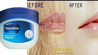 Remove WRINKLES Overnight, Magical Remedy to Remove WRINKLES, Fine Lines Permanently ll NGWorld