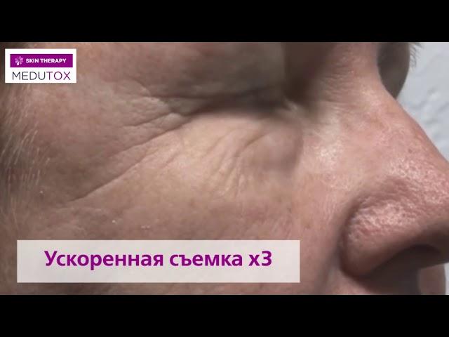 Видео Медутокс