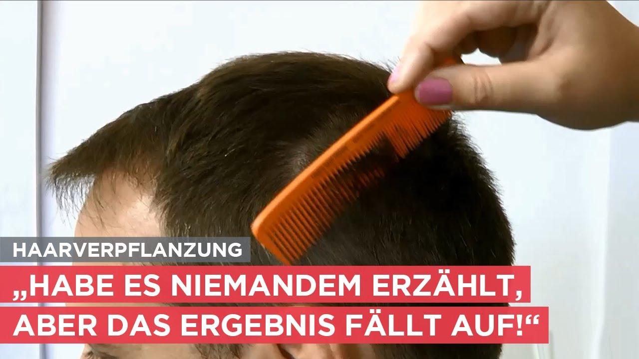"""Haartransplantation: """"Nach der Haarverpflanzung fühle ich mich wirklich gut!"""""""