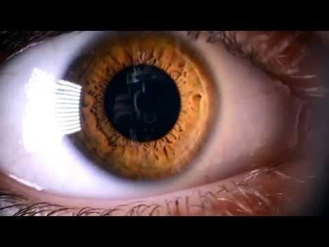 Як лікувати ячмінь або синдром сухого ока. Теплі компреси на повіки.