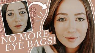 How I Got Rid Of Under Eye Bags/Dark Circles For Good!
