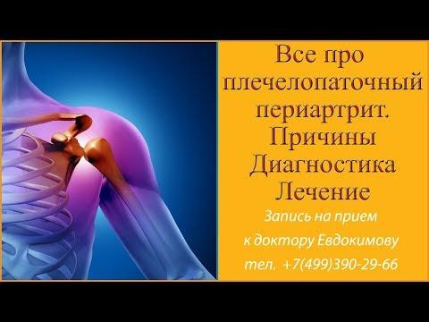 Плечелопаточный периартрит  Причины и лечение. Остеопатические приемы от доктора Евдокимова.