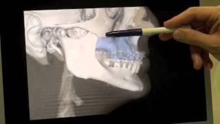 Técnica de Le Fort. Cirugía Ortognática. Dr. García Vega - Clínica MaxiloFacial García Vega