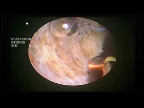 Ich wurde von Prostata-Fibrose geheilt