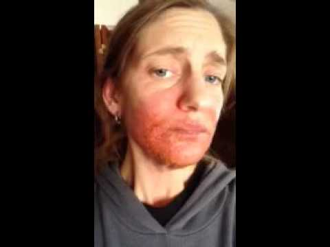 Gli unguenti combinati a eczema