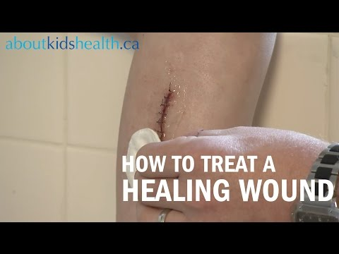 How to care for a healing wound