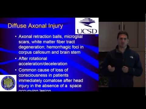 Trauma Day Away 2012 - Acute Nursing Management for Traumatic Brain Injury