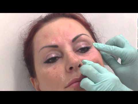 Желатиновая маска под глаза