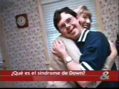 Veure vídeo Síndrome de Down ¿qué es?