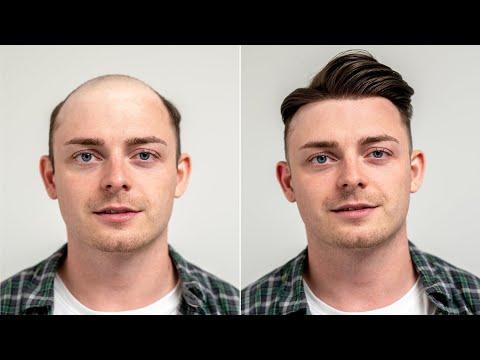 Frenkie de Jong Lookalike mit Haarteil   Transformation mit Haarsystem   Hairsystems Heydecke