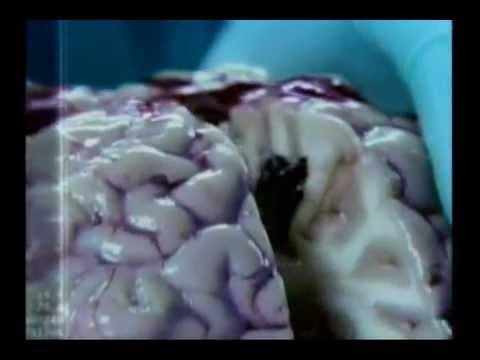 Malavit prosztatagyulladás kezelése