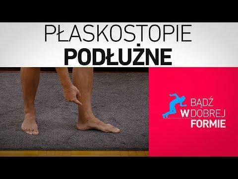 Ortopedyczne buty, kiedy deformacje stóp ploskovalgusnoy