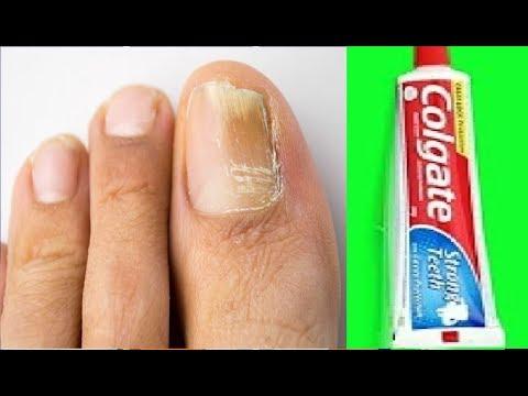 Como tratar um fungo de prego de polegar de perna