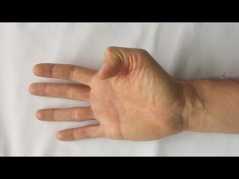 Inflamația articulară a tratamentului picioarelor