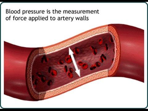 Lhypertension, le handicap de lAVC