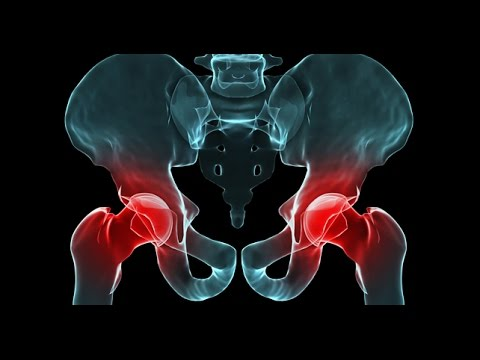 Imagen de rayos X de la enfermedad degenerativa del disco cervical