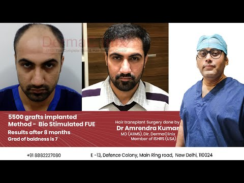 5500 Grafts Hair Transplant Surgery Result after 8 months by Dr Amrendra Kumar