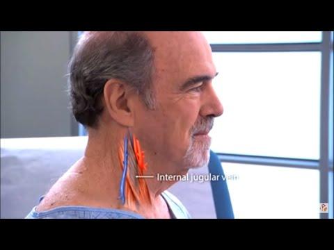 Changement de cœur dans lhypertension