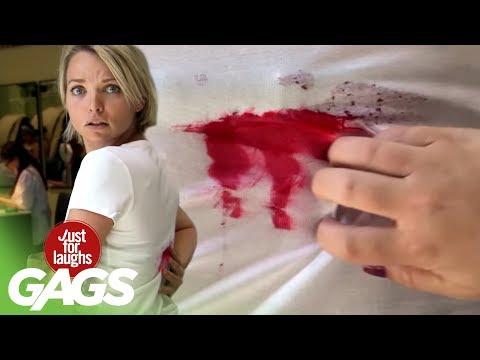 Woman's Back Bleeds Spontaneously