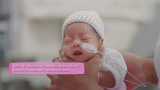 Premature baby - Nutrition and feeding