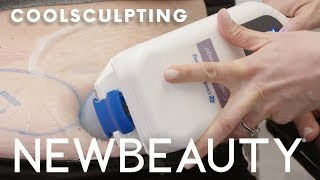 Does CoolSculpting Work? Exactly What to Expect From the Fat Freezing Treatment.