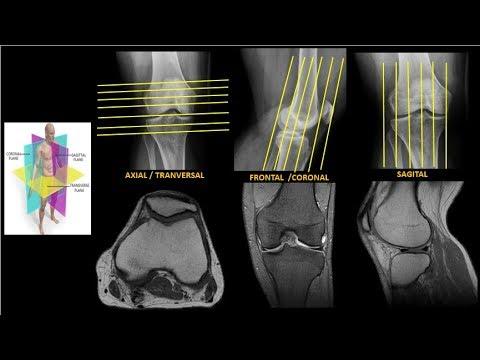 Dolor en la articulación del hombro de la mano izquierda al codo