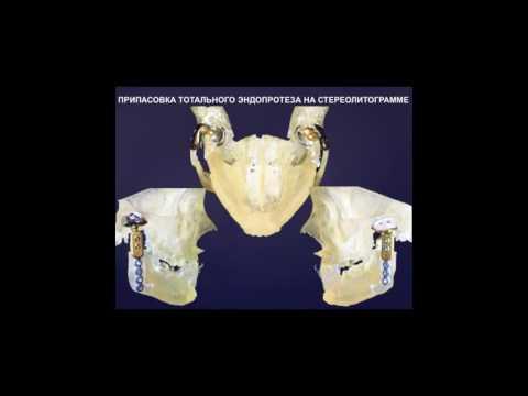 Боль с левой стороны грудной клетки со спины