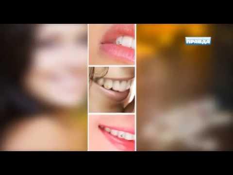 Скайсы, установка в стоматологии -  плюсы и минусы