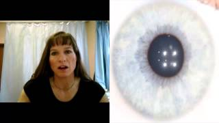 Iridology-Subtypes by Color