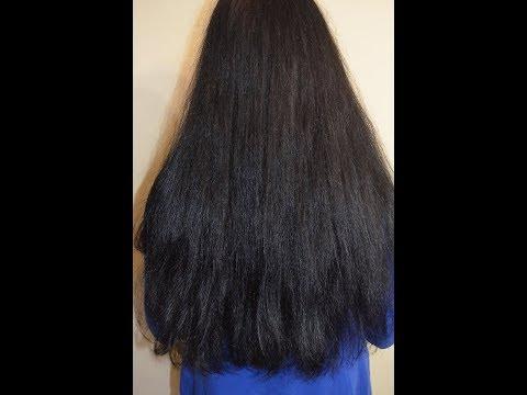 Sebozol wypadanie włosów