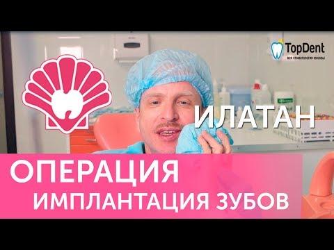 Имплантация зубов в клинике Илатан