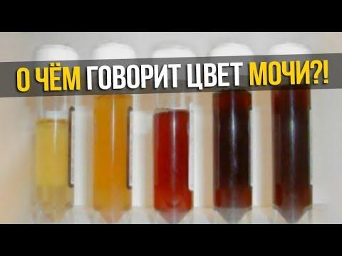 Клиники в санкт-петербурге по лечению гепатита с