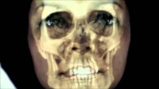 Diagnóstico 3D Ortodoncis Planmeca y escaner intraoral 2