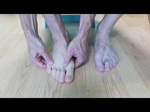 Totul despre chirurgia varicelor piciorului