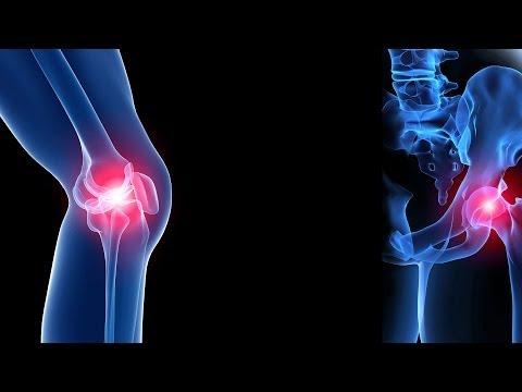 Nyaki osteochondrozis kenőcsök