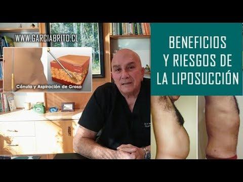 Beneficios y Riesgos de la Liposucción