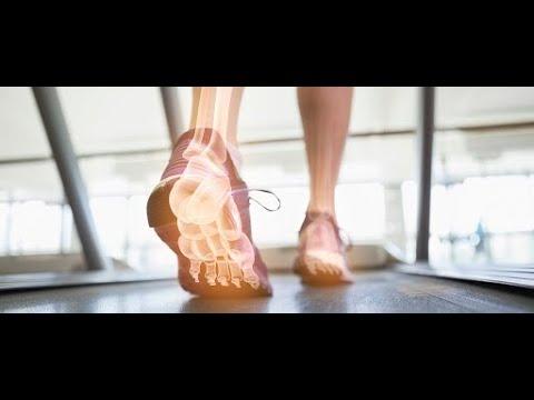 Deteriorarea discului la încheietura mâinii