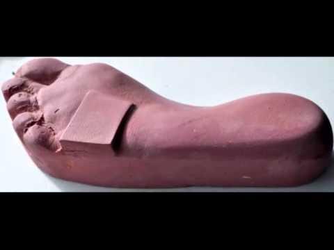 Periartrita unguentului articulației umărului
