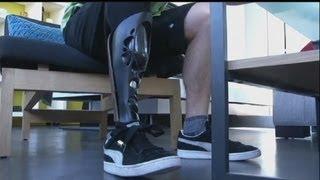 euronews hitech  protez bacaklara üç boyutlu yazıcıyla hazırlanan kişiye özel kılıf yapılıyor
