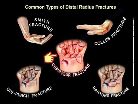 Unguente pentru durere în articulații și tendoane